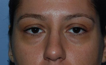 Blepharoplasty and fat grafting 405393