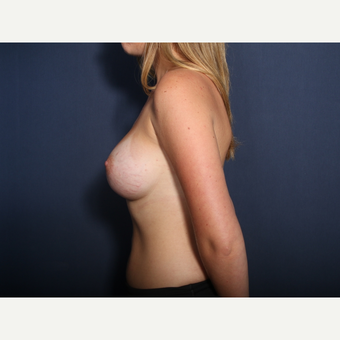 25-34 year old woman treated with Breast Augmentation (view 2 of 2) after 3103339