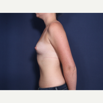 25-34 year old woman treated with Breast Augmentation (view 2 of 2) before 3103339