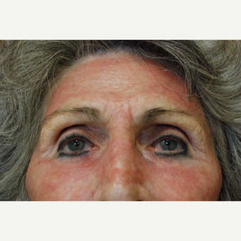 65-74 year old woman treated with Laser Resurfacing with J-Plasma