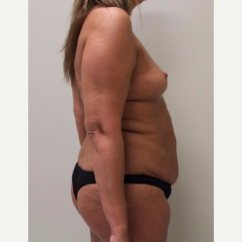 35-44 year old woman treated with Tummy Tuck before 3697208