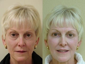 55 year old female treated for volume loss of the face with fat transfer (grafts) before 918798
