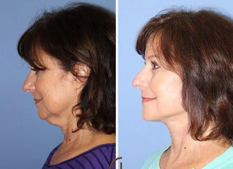 55-64 year old woman treated with Neck Lift before 2990697