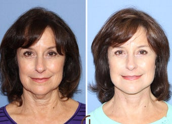 55-64 year old woman treated with Neck Lift after 2990697
