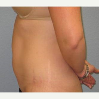 35-44 year old woman treated with Liposuction before 3726486