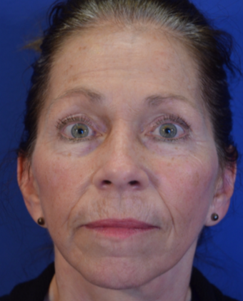 63 year old woman post Facelift after 3743995