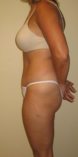 37 year old seeks Tummy Tuck 1325353