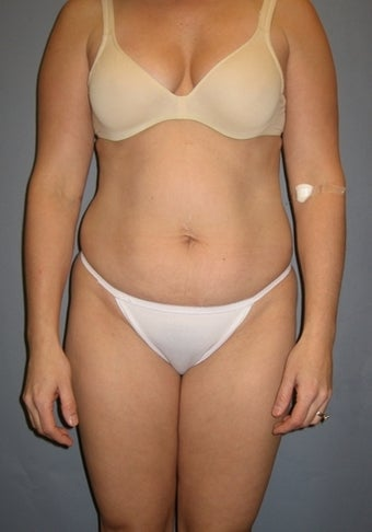 37 year old seeks Tummy Tuck before 1325353