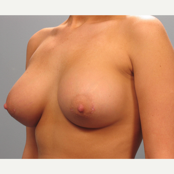 18-24 year old woman treated with Breast Implants after 3293855