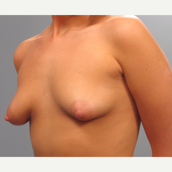 18-24 year old woman treated with Breast Implants before 3293855