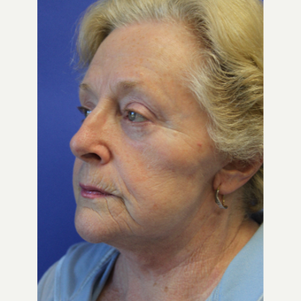 65-74 year old woman treated with Facelift after 3630089