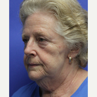 65-74 year old woman treated with Facelift before 3630089