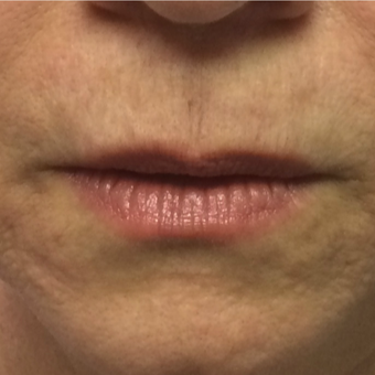 45-54 year old woman treated with Restylane Silk after 3446541