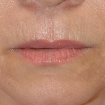 45-54 year old woman treated with Restylane Silk before 3446541