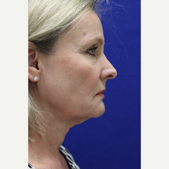 55-64 year old woman treated with Facelift before 3239278