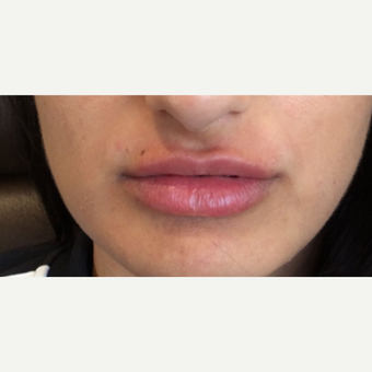 Lip Augmentation after 3065456