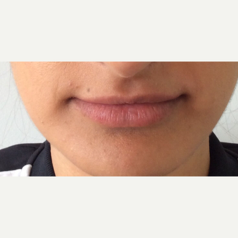 Lip Augmentation before 3065456