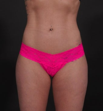 18-24 year old woman treated for Liposuction after 1534676