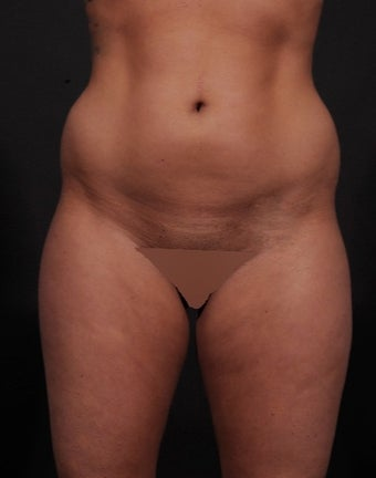 18-24 year old woman treated for Liposuction before 1534676