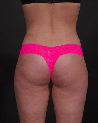 18-24 year old woman treated for Liposuction 1534676
