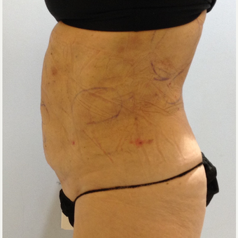 65-74 year old woman treated with Smart Lipo after 3110875