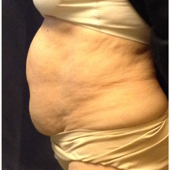65-74 year old woman treated with Smart Lipo before 3110875
