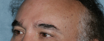 Male Patient Has Fraxel Repair Around Eyes