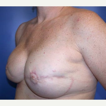 55-64 year old woman treated with Breast Reconstruction 1585131