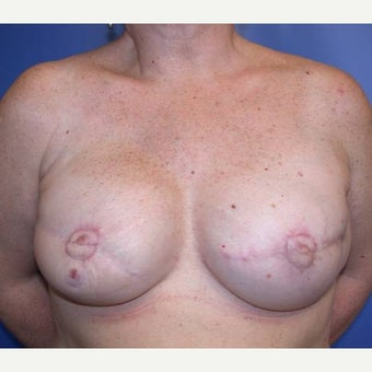 55-64 year old woman treated with Breast Reconstruction after 1585131