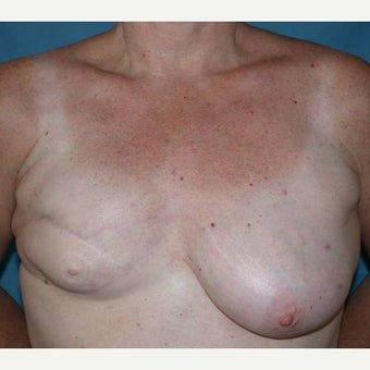 55-64 year old woman treated with Breast Reconstruction before 1585131