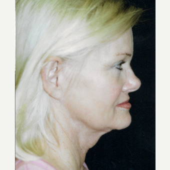45-54 year old woman treated with Facelift before 3271721