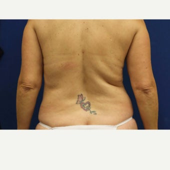 51 year old woman treated with Slim Lipo 1770737