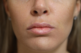 25-34 year old woman treated with Lip Lift after 3577617