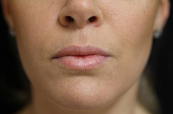 25-34 year old woman treated with Lip Lift before 3577617