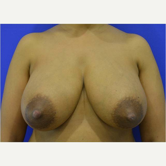 25-34 year old woman treated with Breast Reduction before 3727418