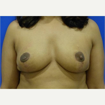 25-34 year old woman treated with Breast Reduction after 3727418