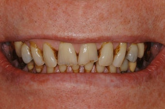 Replacement of worn and broken teeth with full crowns.