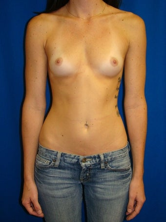 Silicone gel breast implants before 78024