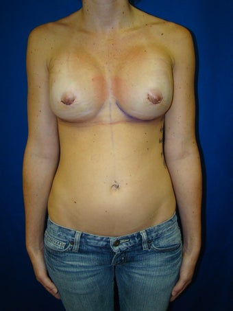 Silicone gel breast implants after 78024