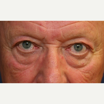 72 year old man with Eyelid Surgery before 3064809
