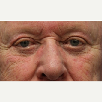 72 year old man with Eyelid Surgery after 3064809