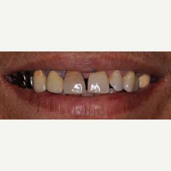 55-64 year old woman treated with Smile Makeover before 3543426