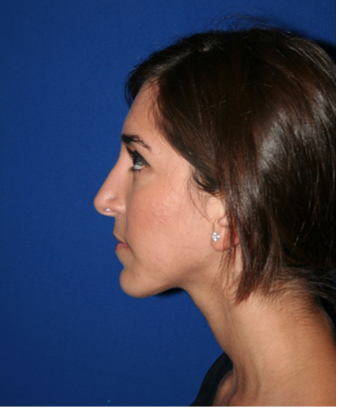 Rhinoplasty after 213134