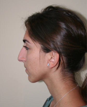 Rhinoplasty before 213134