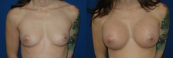 27 year old woman treated with Breast Augmentation before 2990429