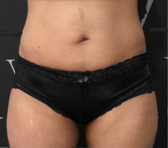 Get rid of the muffin top with CoolSculpting 3070131