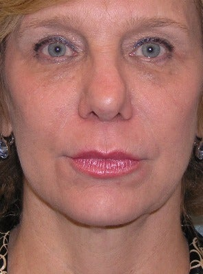 55-64 year old woman treated with Chin Liposuction after 2930508