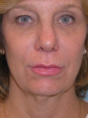 55-64 year old woman treated with Chin Liposuction before 2930508