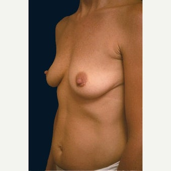 Breast augmentation following pregnancies 1576870