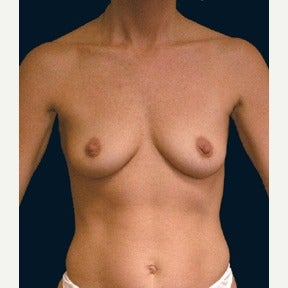Breast augmentation following pregnancies before 1576870